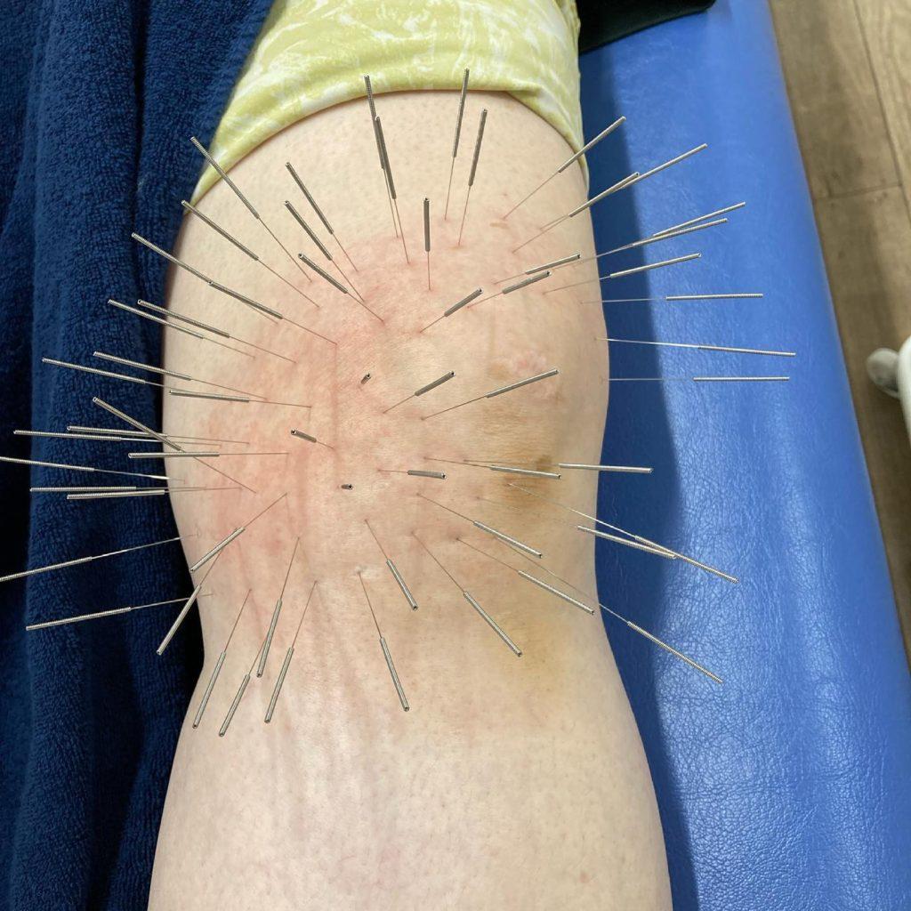 膝のルート鍼治療