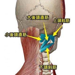 頭痛の原因🤦